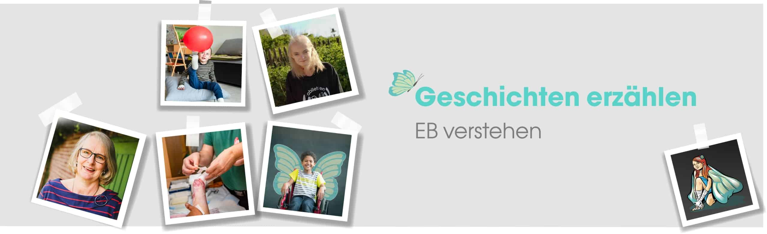 epidermolysis-bullosa-blog-header