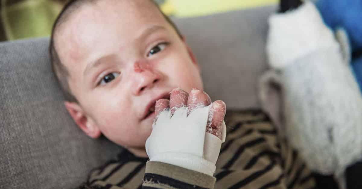 Epidermolysis bullosa - ein Leben mit EB | Piratoplast