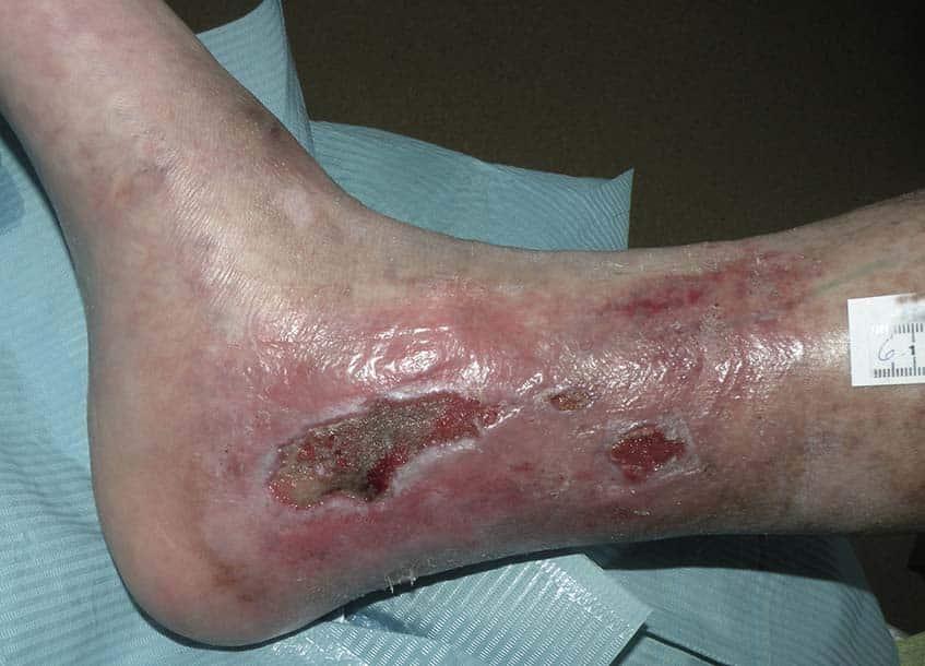 Wundversorgung einer Chronische Wunde bei Schmetterlingskrankheit EB