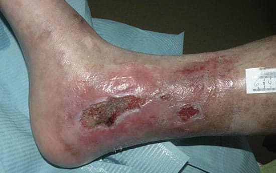 Wundversorgung einer Chronische Wunde bei Epidermolysis bullosa (EB)