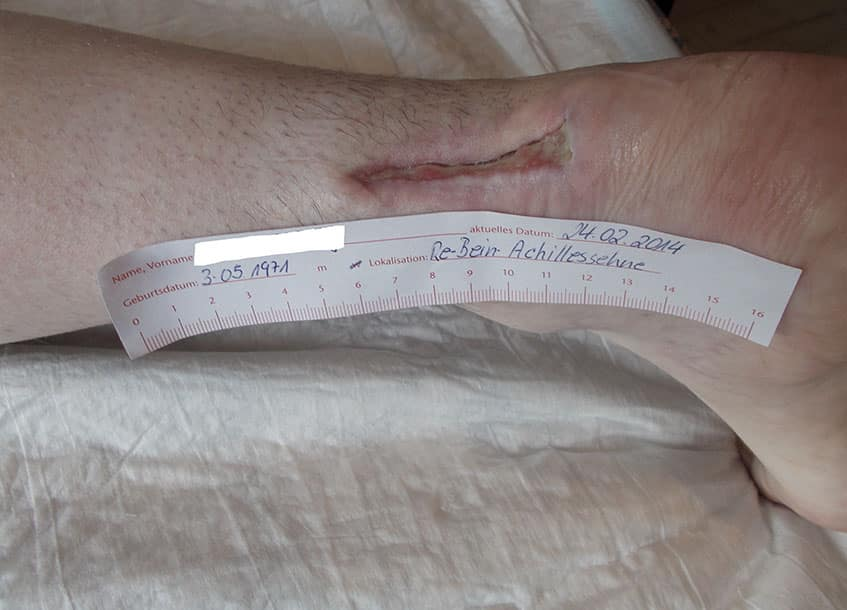 Eine typische chirurgische Wunde